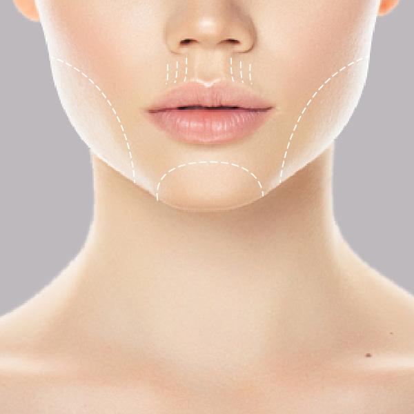 HIFU-lower-face-treatment-areas