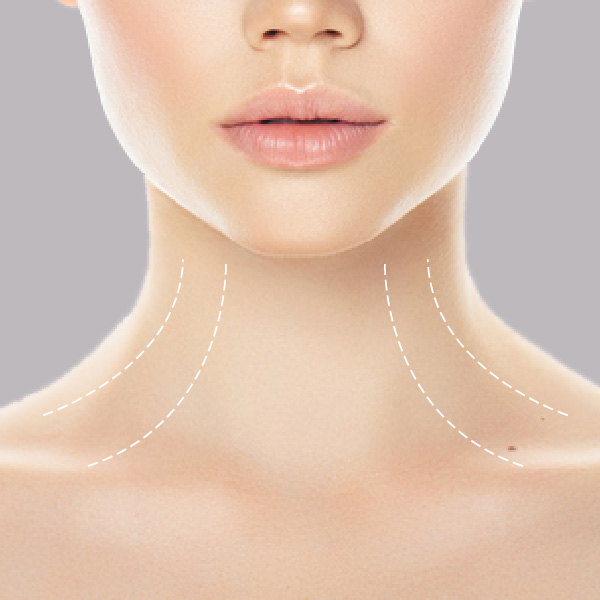 HIFU-neck-deccolatage-face-treatment-areas