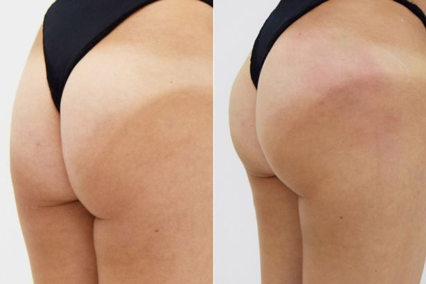 Bum-Lift-Before-After